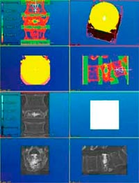 finite-element-analysis-x-ray-images